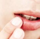 Labbra in estate: come curarle
